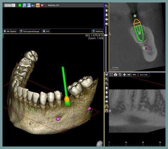 Die Vorteile der navigiert durchgeführten Implantologie